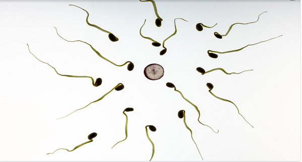 Sperm Freezing