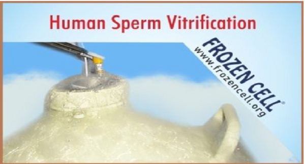 Sperm Vitrification