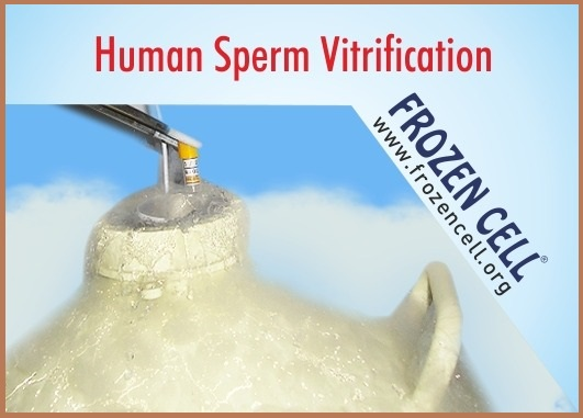 Vitrification of human sperm